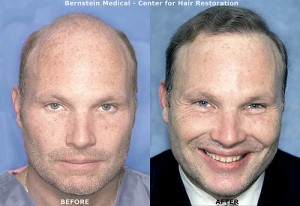 Post image for The Two Types of Hair Replacement Surgery