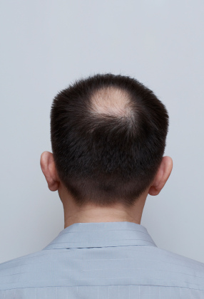 Post image for Cautions about taking Propecia for hair replacement purposes