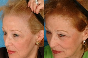 Post image for Non surgical hair replacement in women and precautions about Rogaine