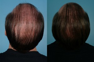 Post image for How Burn Victims Can Benefit From Hair Replacement Procedures