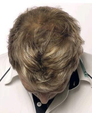 Post image for The Disadvantages Involved With Laser Hair Replacement Surgery