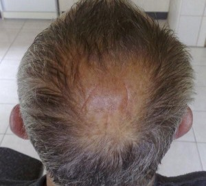 Post image for Common Hair Replacement Surgical Techniques
