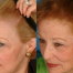 Thumbnail image for Non surgical hair replacement in women and precautions about Rogaine