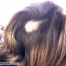 Thumbnail image for Hair replacement to correct Trichotillomania